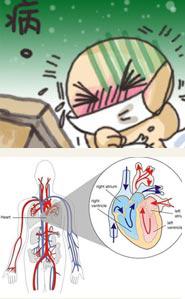 川崎病病因病理的研究进展